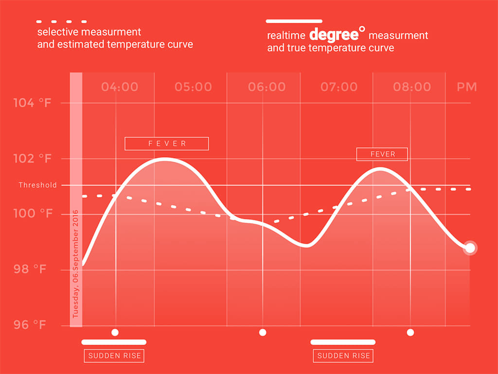 this chart is showing the advantage of continuous temperature measurment against intermittent vital sign measurement
